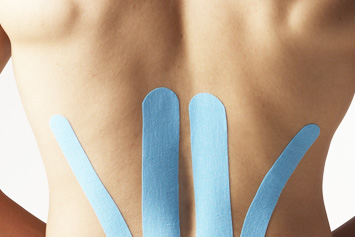 Kinesio-Taping-Therapie